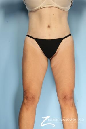 Thigh Lift: Patient 4 - After Image