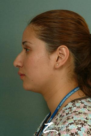 Rhinoplasty: Patient 13 - Before and After Image 2