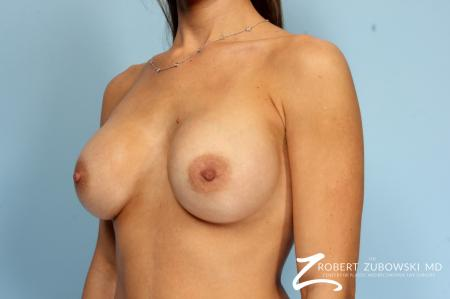 Breast Augmentation: Patient 36 - After Image 2