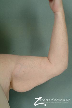 Arm Lift: Patient 3 - Before Image 1