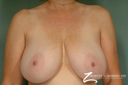 Breast Reduction: Patient 23 - Before Image