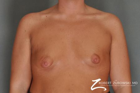 Breast Lift And Augmentation: Patient 11 - Before Image 1