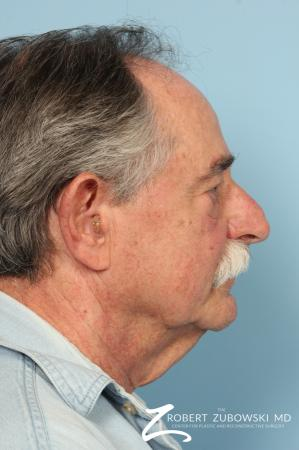 Neck Lift: Patient 6 - Before and After Image 2