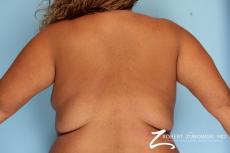 Liposuction: Patient 9 - Before Image