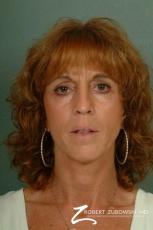 Blepharoplasty: Patient 8 - After Image