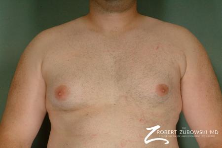 Gynecomastia: Patient 7 - Before Image