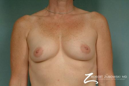Breast Augmentation: Patient 22 - Before Image 1