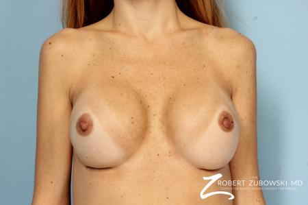 Breast Revision: Patient 1 - After Image 1