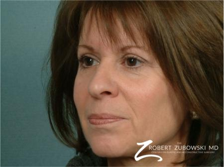 Blepharoplasty: Patient 11 - After Image