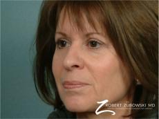Blepharoplasty: Patient 11 - After Image