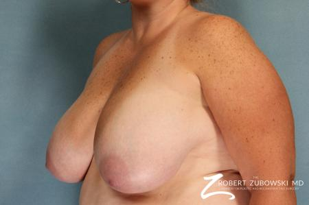 Breast Lift And Augmentation: Patient 10 - Before and After Image 2
