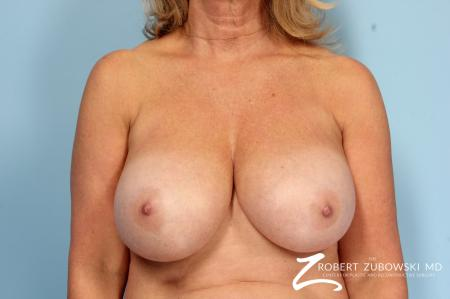 Breast Reduction: Patient 24 - Before Image