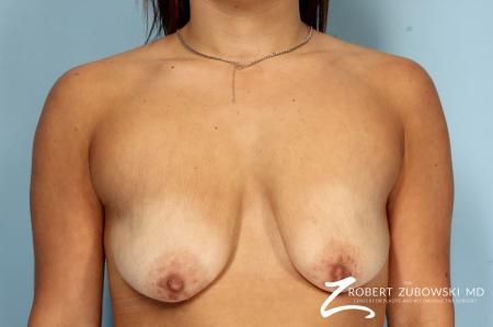 Breast Lift And Augmentation: Patient 18 - Before Image 1