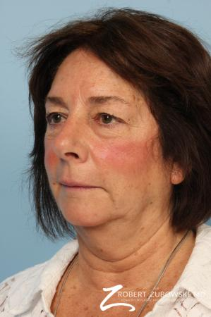 Blepharoplasty: Patient 37 - After Image 1