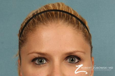 BOTOX® Cosmetic: Patient 3 - After Image 1