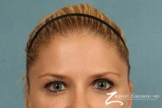 BOTOX® Cosmetic: Patient 3 - After Image