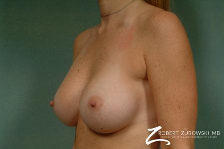 Breast Augmentation: Patient 16 - Before and After Image 2