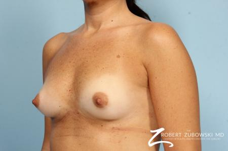 Breast Augmentation: Patient 40 - Before Image 4