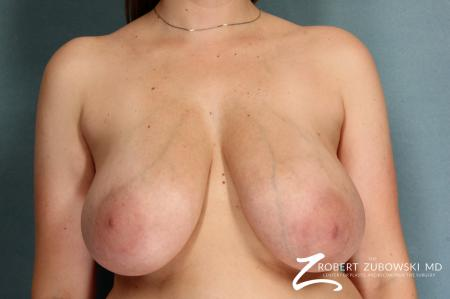 Breast Lift And Augmentation: Patient 9 - Before Image