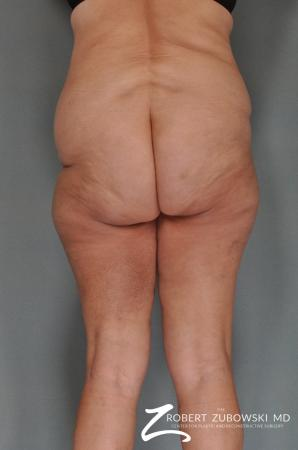 Body Lift: Patient 1 - Before and After Image 2