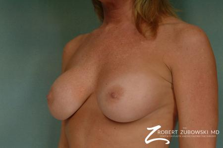 Breast Augmentation: Patient 31 - Before and After Image 2