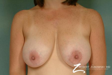 Breast Lift: Patient 9 - Before Image