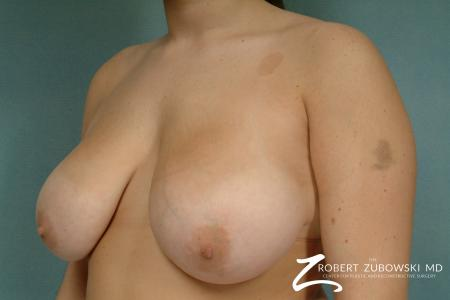 Breast Reduction: Patient 21 - Before and After Image 2