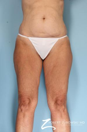 Liposuction: Patient 46 - Before Image 1