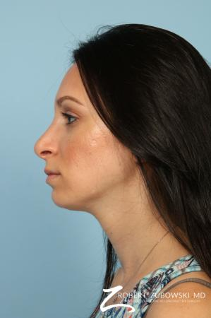 Rhinoplasty: Patient 25 - After Image 2