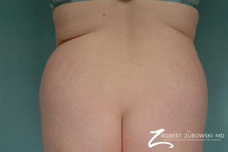 Liposuction: Patient 28 - Before Image