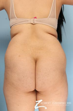 Butt Augmentation: Patient 4 - Before Image