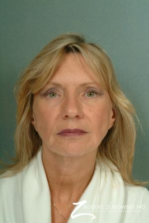 Facelift: Patient 13 - Before Image 1