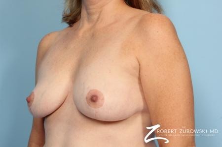 Breast Lift: Patient 11 - After Image 2