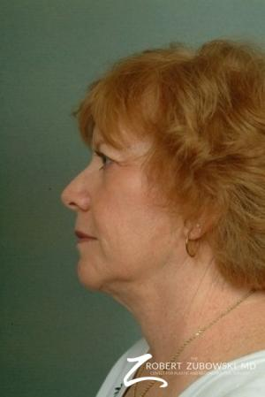 Facelift: Patient 10 - After Image 2