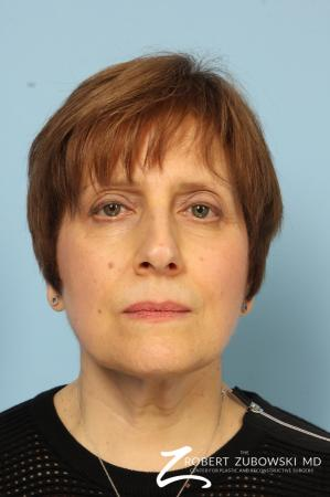 Neck Lift: Patient 1 - After Image