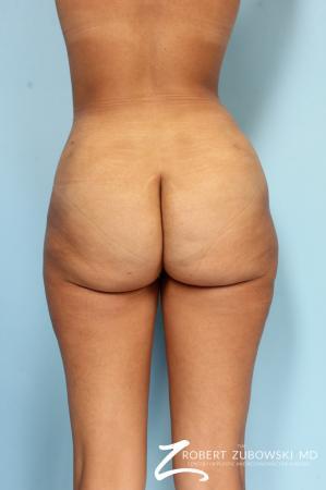 Liposuction: Patient 49 - After Image 4