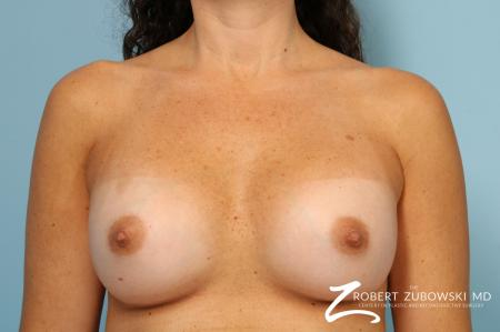 Breast Augmentation: Patient 40 - After Image 1