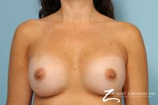 Breast Augmentation: Patient 40 - After Image