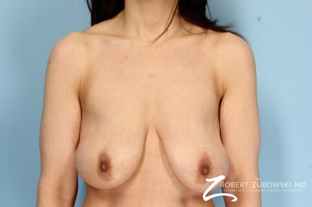 Breast Lift And Augmentation: Patient 6 - Before Image