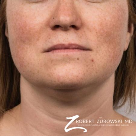 CoolSculpting®: Patient 1 - After Image