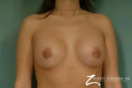 Breast Augmentation: Patient 30 - After Image 1