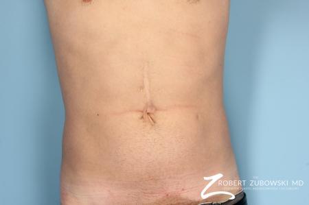 Liposuction: Patient 16 - Before Image