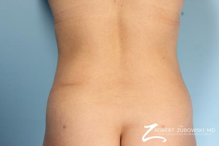 Liposuction: Patient 8 - After Image 1