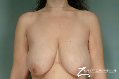 Breast Lift: Patient 8 - Before Image