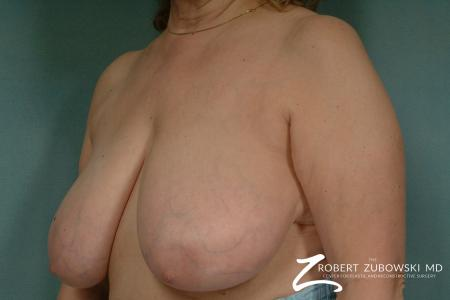 Breast Reduction: Patient 20 - Before and After Image 2