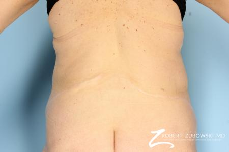 CoolSculpting®: Patient 2 - Before and After Image 5