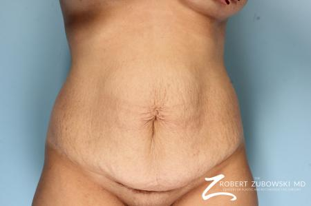 Tummy Tuck: Patient 25 - Before Image 1