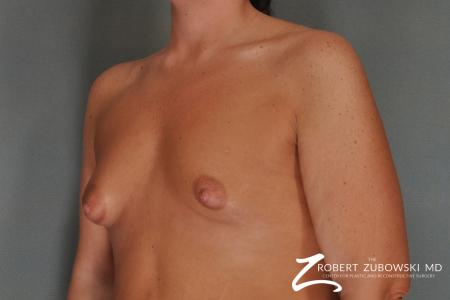 Breast Lift And Augmentation: Patient 11 - Before and After Image 2