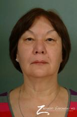 Blepharoplasty: Patient 23 - Before Image