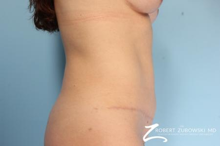 Tummy Tuck: Patient 2 - After Image 2